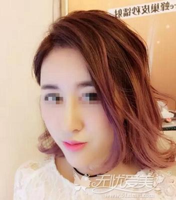 上海伊莱美鼻综合手术1个月