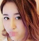 """上海伊莱美鼻综合手术拯救我在美容院整的""""歪鼻子"""""""