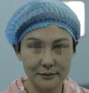 从39重返29岁的咨询师见证云南华美美莱微拉美手术效果
