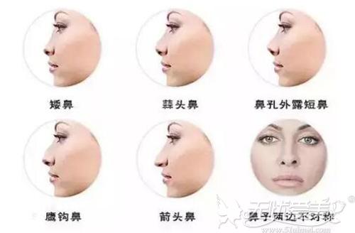 能做鼻综合的鼻型