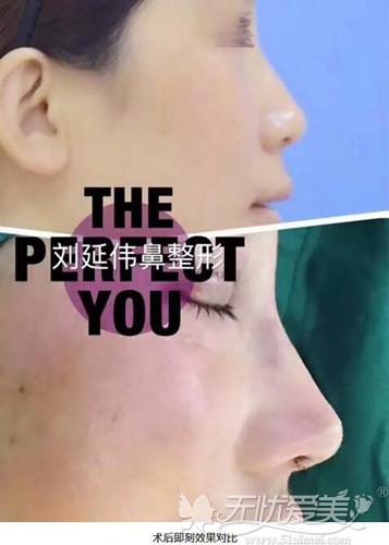 刘延伟鼻整形术后即刻效果案例