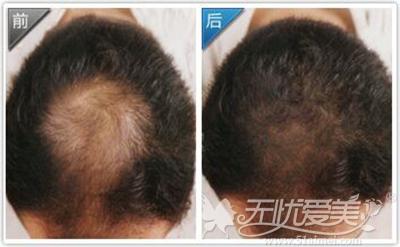 汕头曙光毛发移植前后对比