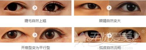 江门华美双眼皮手术案例