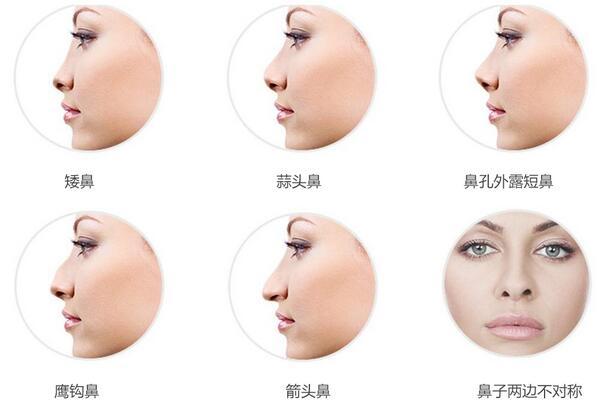 崔大夫达拉斯综合隆鼻系统采用三维立体式整体设计