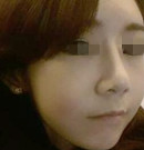 """长春艾尔丽医疗美容""""隆鼻+面部填充""""案例反馈"""