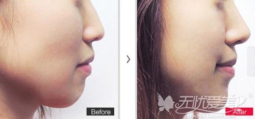 北京丽都鼻综合手术案例