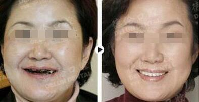 上海德伦口腔种植牙案例效果对比图