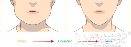 咬肌肥大的国字脸只能依靠瘦脸针变小脸