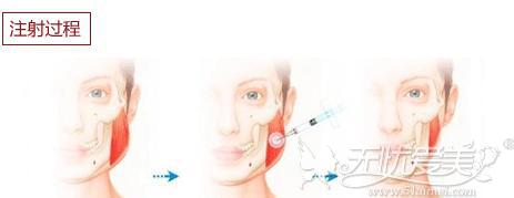 瘦脸针注射过程