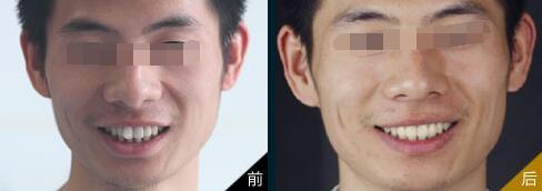 北京丽都整形牙齿整形案例