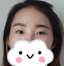 分享一妹子找南昌佳美陈烈花了3000元做的切开双眼皮案例术前