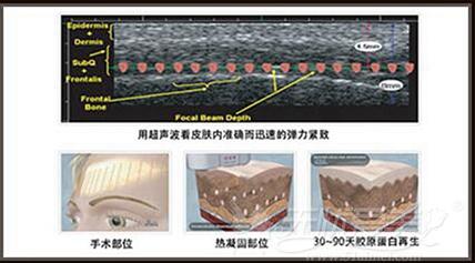 深圳美莱超声刀除皱系统