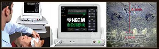 深圳美莱超声刀除皱定位指标线技术
