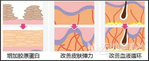 深圳美莱6D线雕提升术