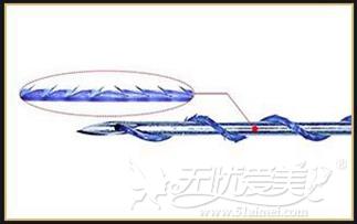 深圳美莱线雕提升线