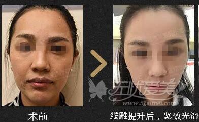 深圳美莱线雕提升效果