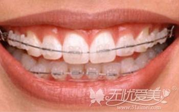 福州格莱美MBT直丝弓牙齿矫正技术