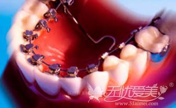 福州格莱美舌侧隐形牙齿正畸术