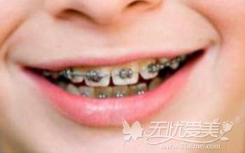 福州格莱美自锁托槽牙齿矫治技术