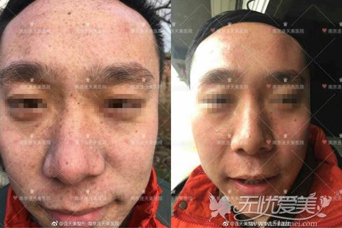 南京连天美激光祛斑真人案例