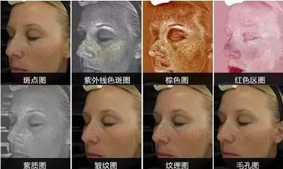 北京丽都整形医院VISIA皮肤检测仪检测8种皮肤指标
