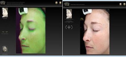 VISIA皮肤诊断技术将同年龄人的照片前后对比