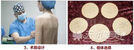 衡阳雅美假体隆胸术前设计
