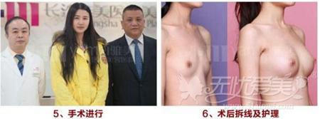 衡阳雅美假体隆胸术后恢复