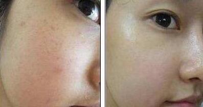 坚持纳米水光治疗,见证肌肤逆龄生长