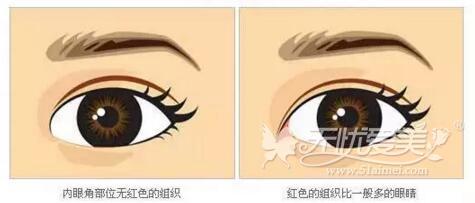 哪种眼睛需要要开眼角