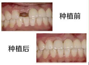 深圳凯伦口腔做种植牙前后对比案例