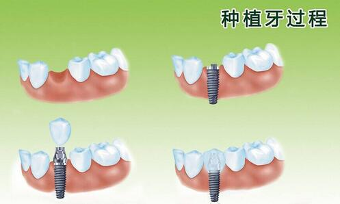 种植牙过程是非常简单的,不会有痛苦!