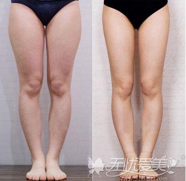 大腿吸脂前后对比