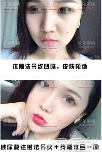 面部线雕+注射前后对比案例