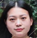 武汉同济自体脂肪填充美塑 让80后剩女立刻减龄变少女