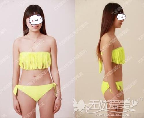 蒋女士在北京丽都隆胸手术前拍照