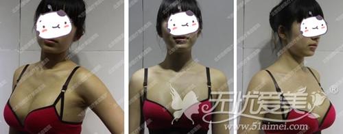 蒋女士在北京丽都隆胸手术后26天