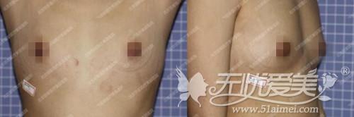 蒋女士在北京丽都隆胸手术前记录