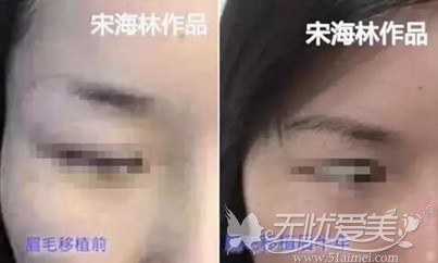 眉毛种植案例