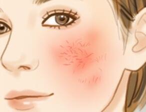 北京协和医生:为什么脸上会有红血丝呢?