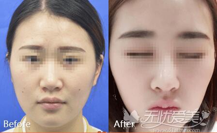 注射隆鼻案例