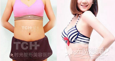重庆时光腰腹吸脂手术案例