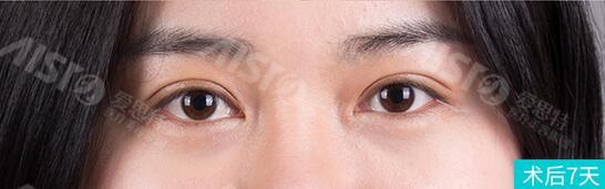 眼睛一单一双,在武汉爱思特做灵韵精雕大眼术后7天照片