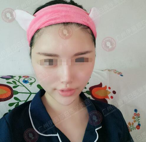 97年妹子在广州伊丽莎白做自体脂肪填充面部后第3天照片