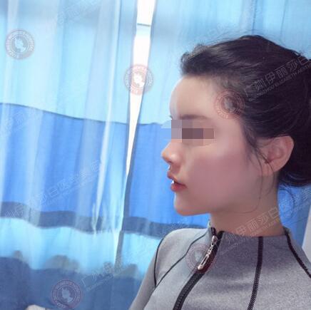 97年妹子在广州伊丽莎白做自体脂肪填充面部后第7天照片