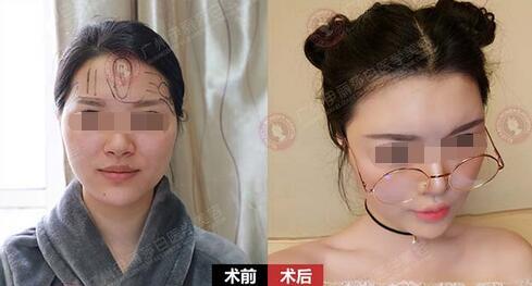 97年妹子在广州伊丽莎白做自体脂肪填充面部术前术后对比图