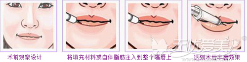 玻尿酸注射丰唇原理