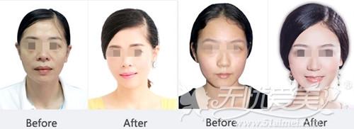 襄阳维多利亚超声刀面部除皱案例