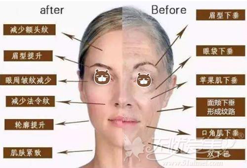 襄阳维多利亚超声刀除皱适合的面部部位