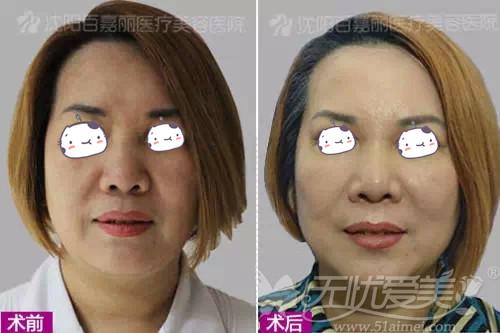百嘉丽黄金5维综合线雕提升眼袋、下颌缘案例